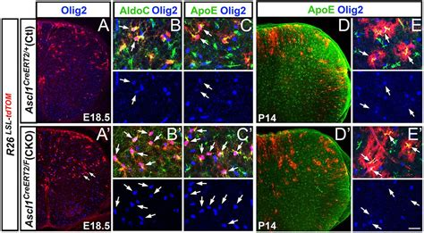 Ascl1 controls the number and distribution of astrocytes