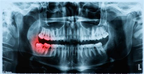 Dental X-Rays and Dental Photography in Los Alamitos
