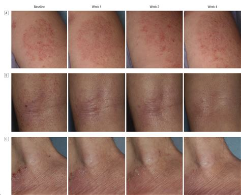Efficacy and Safety of Topical WBI-1001 in the Treatment