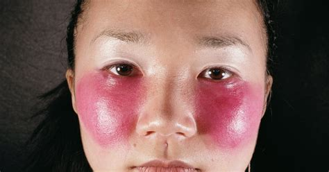Red cheeks in kids during cold weather   eHow UK