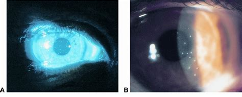 Thygeson superficial punctate keratitis - American Academy